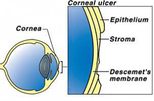 Corneal_Ulcer_contact lenses